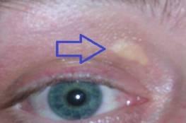 علامات تشير إلى ارتفاع مستوى الكوليسترول في الدم تعرف عليها