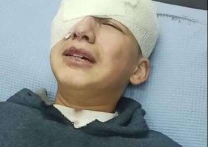 """""""التنمية"""" تدعو لفتح تحقيق بجريمة الاحتلال ضد الطفل البطش بفقد عينه"""