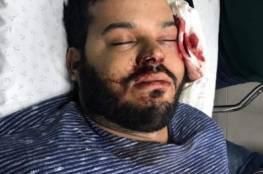حملة تضامن مع الصحفي درويش بعد فقدان عينه اليسرى كلياً