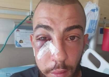 إصابة شاب بجروح وكسور إثر اعتداء الاحتلال عليه في القدس