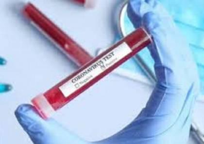 """عالمة أمريكية: فقط """"معجزة بيولوجية"""" يمكنها أن توقف تفشي وباء كورونا!"""