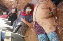 صور مأساوية.. وفاة 15 امرأة مغربية في تدافع خلال توزيع مساعدات غذائية