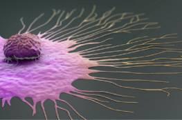 اختراق سرطان الثدي مع اكتشاف طريقة ثورية لعلاج المرضى!