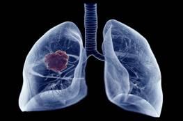 """علامة منبهة في المشي قد تكشف عن الإصابة بـ""""سرطان الرئة القاتل"""""""