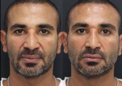 أحمد سعد يكشف سبب إجرائه جراحة تجميلية في وجهه