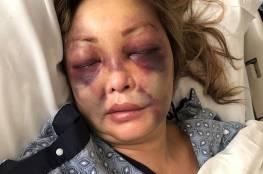 """صورة مروعة: ادعاء ضد شقيق أمير قطر باغتصاب سيدة """"لا تتذكر أي شيء يوم الحادث"""""""