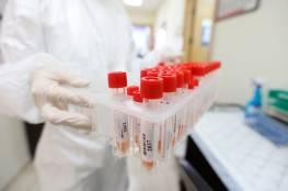 تسجيل 14 إصابة بفيروس كورونا في محافظة الخليل ترفع حصيلة اليوم إلى 156 إصابة