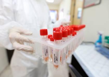 الصحة: تسجيل 264 إصابة جديدة بفيروس كورونا ترفع إصابات اليوم إلى 472