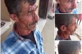 إصابة فلسطيني باعتداء للمستوطنين جنوب غرب جنين