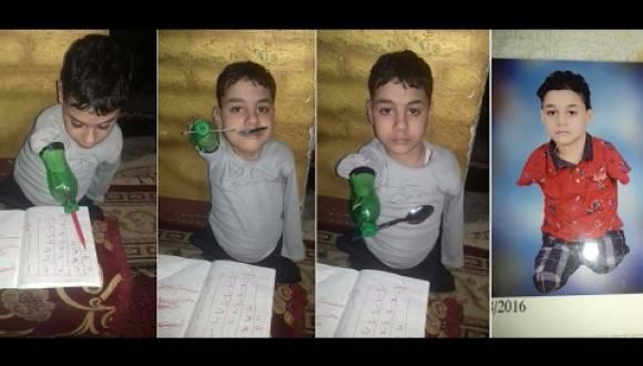 طفل مصري فقد جميع اطرافه يستعمل