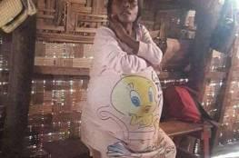 امرأة ظنت أنها حامل بتوأمين تُصدم بحقيقة مرة!