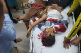 الصحة بغزة: 20 شهيد من بينهم 9 اطفال و 95 اصابة بجراح مختلفة جراء العدوان الاسرائيلي