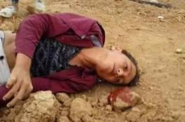 """مبعوث ترامب """" يشعر بالحزن """": إسرائيل تجري تحقيقا باستشهاد طفل بغزة"""