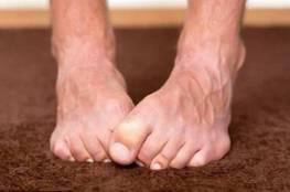 هذا ما تخبره قدماك عن صحتك!