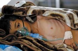 الصحة العالمية: الكوليرا يقضي على 1500 مواطن يمني