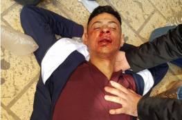 إصابة مقدسي إثر اعتداء مستوطنين عليه قرب المسجد الأقصى