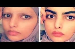 بعد تعرضها للضرب في لندن: فتاة سعودية تثير الجدل بحلاقة حاجبيها