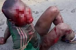 صور.. ضربوا طفلاً بوحشية ثم أحرقوه