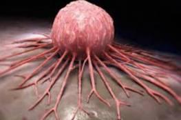 العلاج المناعي يحفز خلايا تقتل السرطان