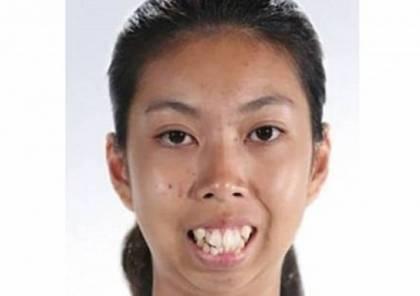 صور: عملية تجميلية واحدة في وجهها غيرت مظهرها تماماً!!
