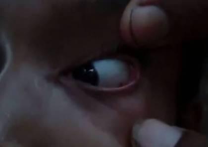 فيديو مروع: لحظة إزالة 60 نملة من عين فتاة