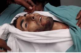 شهيدان في غزة وعشرات الاصابات في مواجهات مع جيش الاحتلال في الضفة والقدس والقطاع