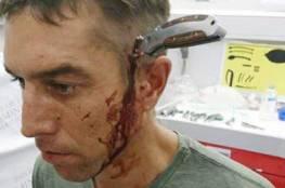 مجرمان غرزا السكين في رأسه... فتوجه إلى المستشفى ليُعالج نفسه