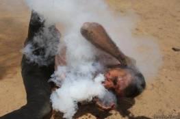 """صحة غزة تكشف عن هوية """"مصاب قنبلة الغاز في وجهه"""" وحالته الصحية"""