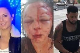"""""""اعتداء وحشي"""" يبدل ملامح شابة بريطانية في تركيا"""