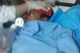 صور : استشهاد فتى برصاص الاحتلال شمال شرق رام الله