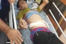 صور.. الصحة: 189إصابة منها 50 بالرصاص الحي جراء استهداف الاحتلال لمسيرة العودة