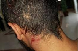 إصابة سائق مقدسي إثر اعتداء مستوطنين عليه