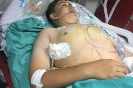 والد طفل جريح يناشد وزير الصحة علاج ابنه في الخارج