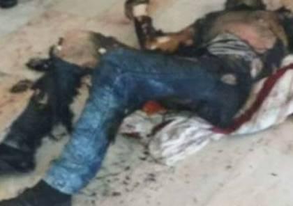 إصابة شاب بجروح خطيرة جراء محاولته الانتحار حرقا في مدينة غزة