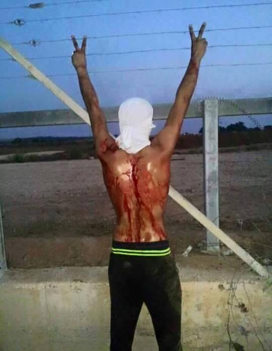 اصابة فتى بجراح خطيرة برصاص الاحتلال شرق البريج وسط قطاع غزة